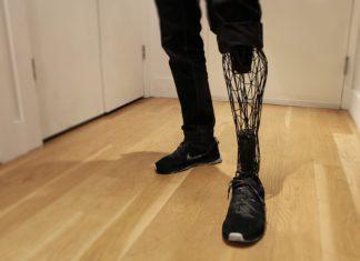 проблемы предоставления протезно-ортопедической помощи инвалидам